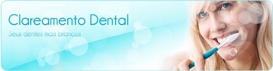 Clareamento Dental.
