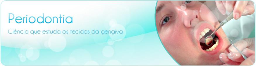 Tratamento gengival (Periodontia)